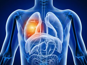 Read more about the article 5Simple Exercises To Improve Your Lung Health